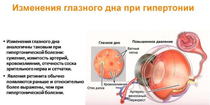 Изменения глазного дна при гипертонии