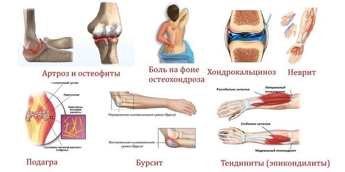 Причины болей в локте