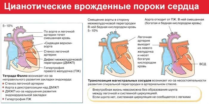 Цианотические врожденные пороки сердца