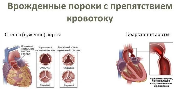 С препятствием выброса кровотока