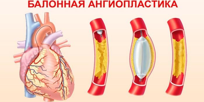 Баллонная ангиопластика