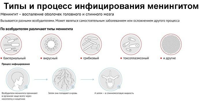 Типы и процесс инфицирования менингитом