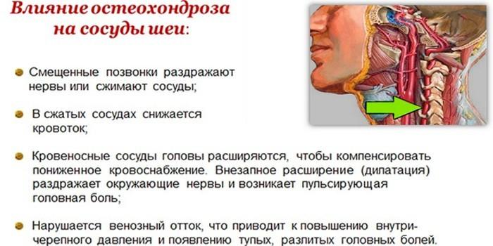 Влияние остеохондроза на сосуды шеи