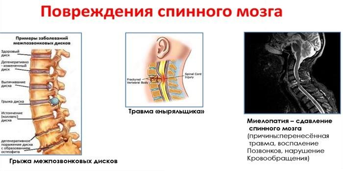 Повреждения спинного мозга