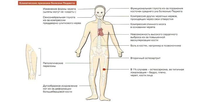 Клинические признаки болезни Паджета