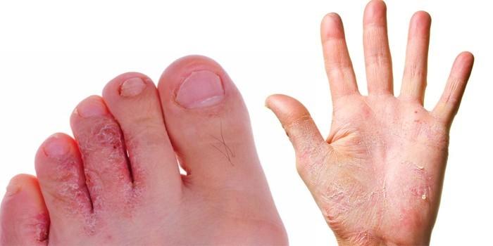 Поражения ног и рук