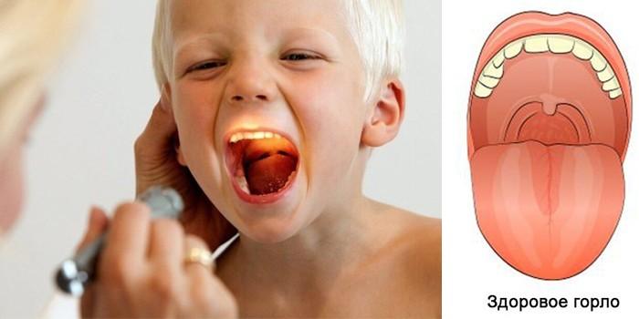 Вид здорового горла