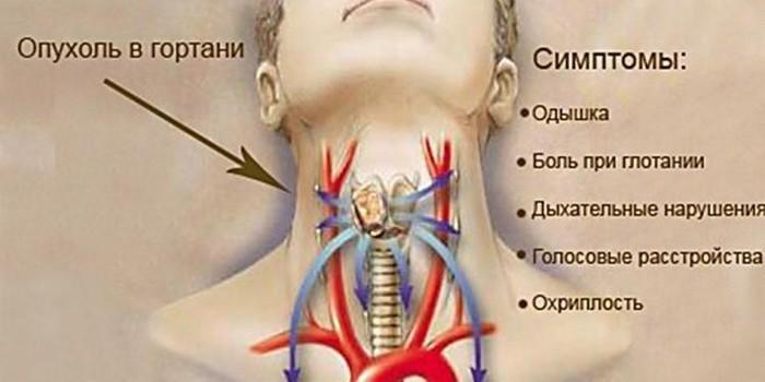 Симптоматика опухоли