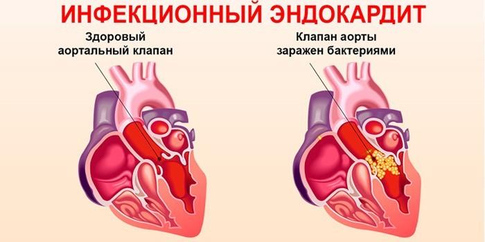 Клапан аорты сердца поражен бактериями
