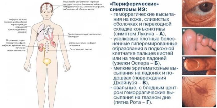 внутренние и периферические симптомы ИЭ