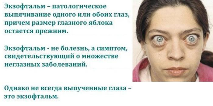 Симптом экзофтальм