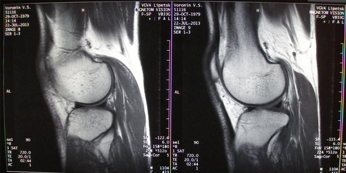 Начальная стадия заболевания на рентгеновском снимке