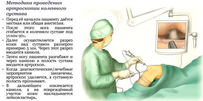 Методика проведения артроскопии