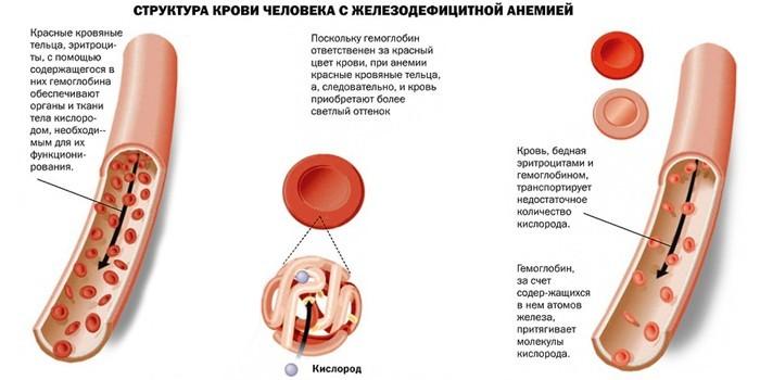 Структура крови у больного