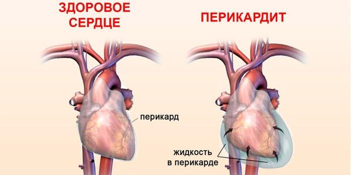 Здоровое сердце и перикардит