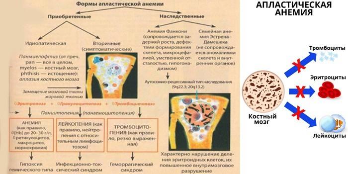 Формы апластической анемии