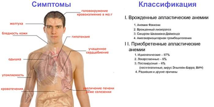 Симптомы и классификация заболевания
