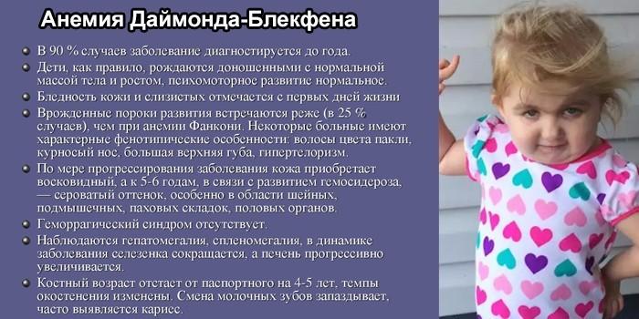 Анемия Даймонда-Блекфена
