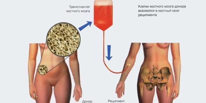 Как проводят трансплантацию костного мозга