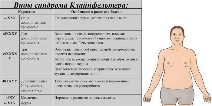 Кариотип и особенности развития болезни