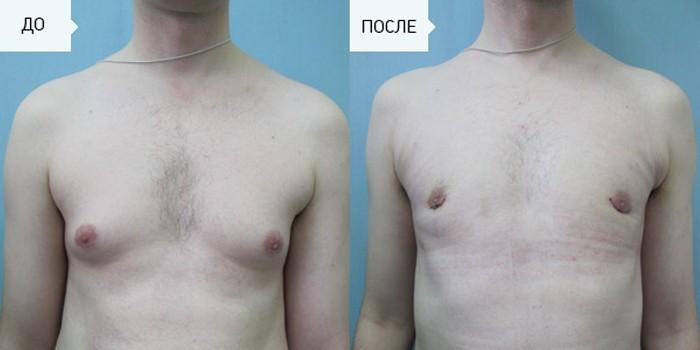 Фото до и после масэктомии