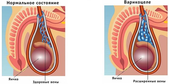 Нормальное состояние вен и варикоцеле