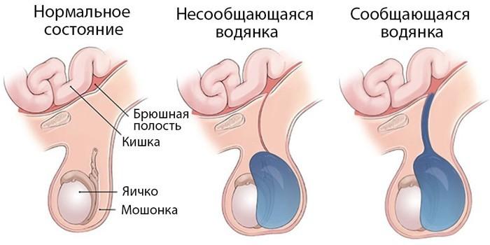 Сообщающаяся и несообщающаяся форма заболевания