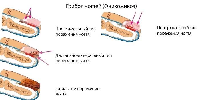 Типы поражения ногтей грибком