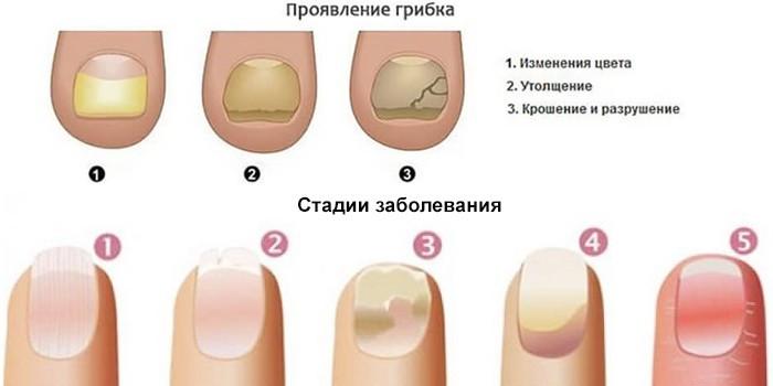 Проявления и стадии онихомикоза
