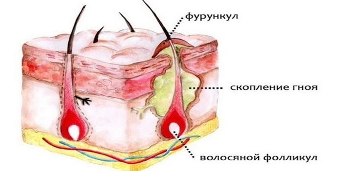 Как лечить фурункул в домашних условиях: схема лечения