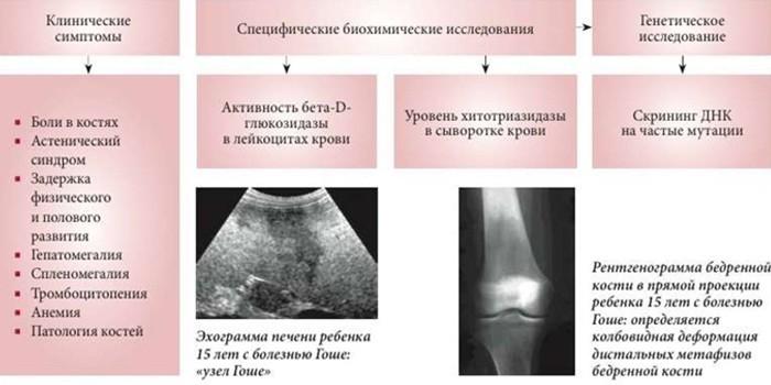 Симптомы и признаки Сфинголипидоза