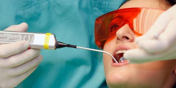 Лечение пародонтоза лазером