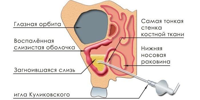Применение иглы Куликовского