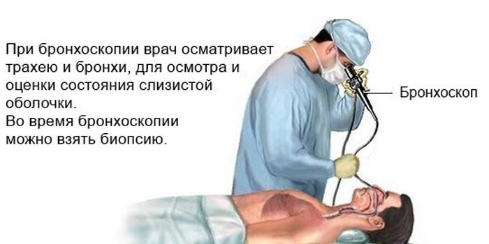 Биопсия при бронхоскопии