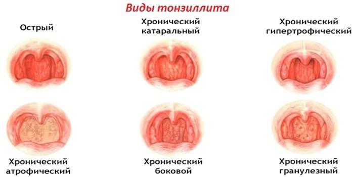 Виды заболевания