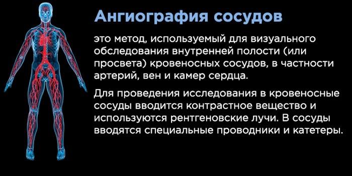 Ангиография сосудов