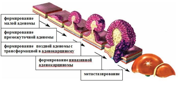 Развитие аденокарциномы