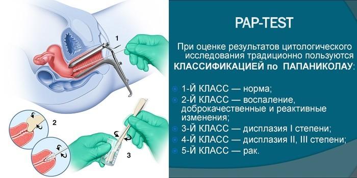 Pap-test