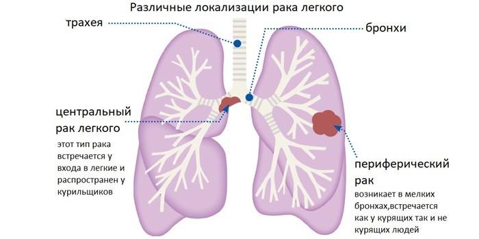 Различные локализации рака легких