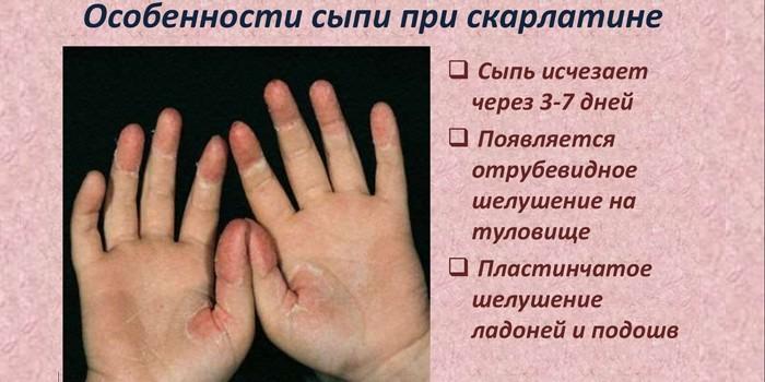 Особенности сыпи