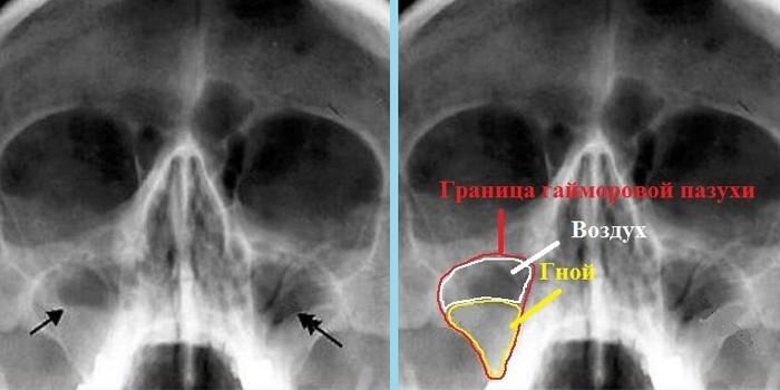 Гайморит на рентгеновском снимке