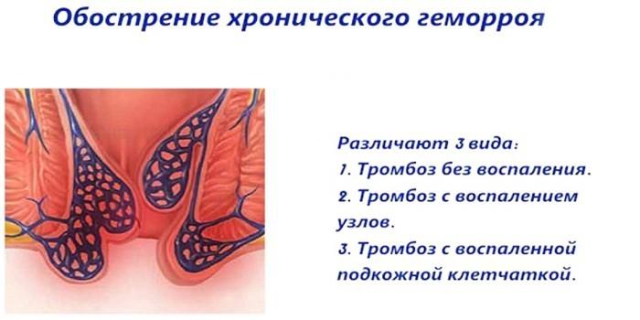 Тромбозы геморроидальных узлов