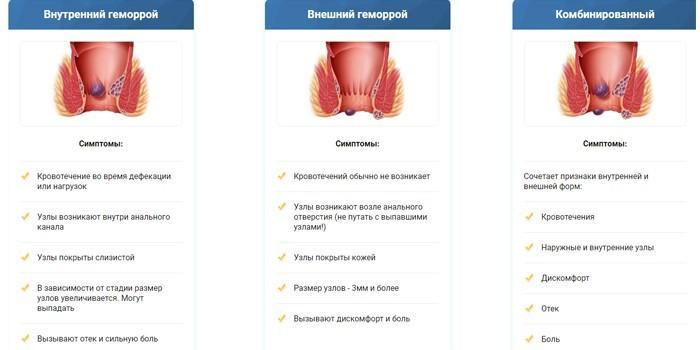 Симптоматика внутреннего, внешнего и комбинированного