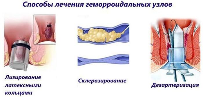 Способы лечения геморроидальных узлов