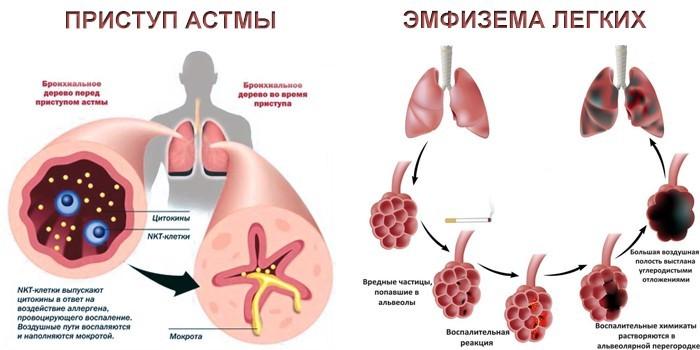 Приступ астмы и эмфизема легких