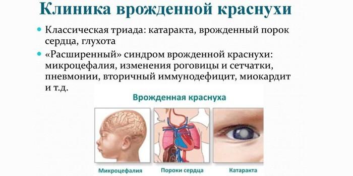 Клиника врожденной краснухи
