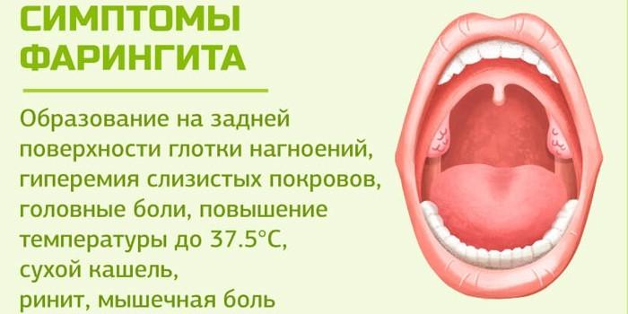 Симптоматика фарингита