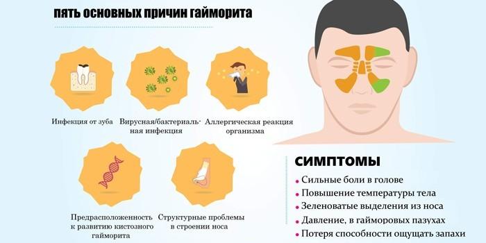 Основные причины гайморита