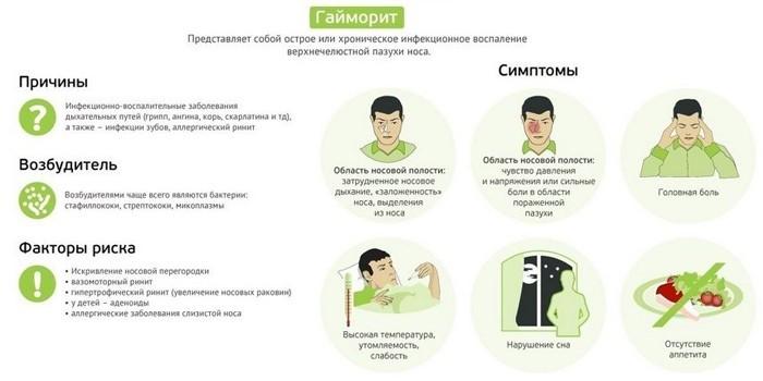 Причины, факторы риска и симптомы гайморита