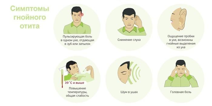 Симптомы гнойного отита
